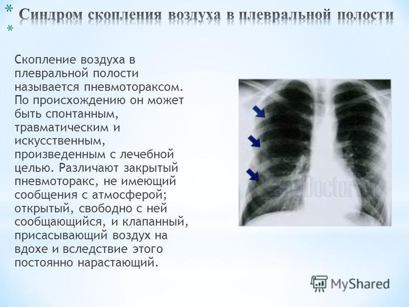 * Скопление воздуха в плевральной полости называется пневмотораксом. По происхождению он может быть спонтанным, травматическим и искусственным, произведенным с лечебной целью. Различают закрытый пневмоторакс, не имеющий сообщения с атмосферой; открыт
