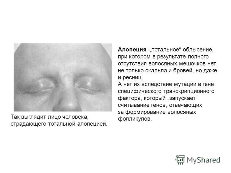 Так выглядит лицо человека, страдающего тотальной алопецией. Алопеция -тотальное облысение, при котором в результате полного отсутствия волосяных мешочков нет не только скальпа и бровей, но даже и ресниц. А нет их вследствие мутации в гене специфичес