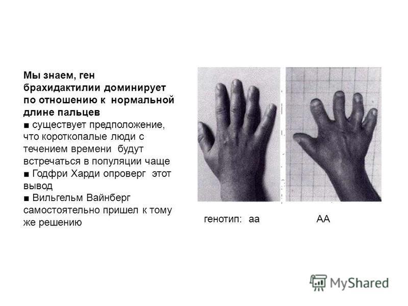 Мы знаем, ген брахидактилии доминирует по отношению к нормальной длине пальцев существует предположение, что короткопалые люди с течением времени будут встречаться в популяции чаще Годфри Харди опроверг этот вывод Вильгельм Вайнберг самостоятельно пр