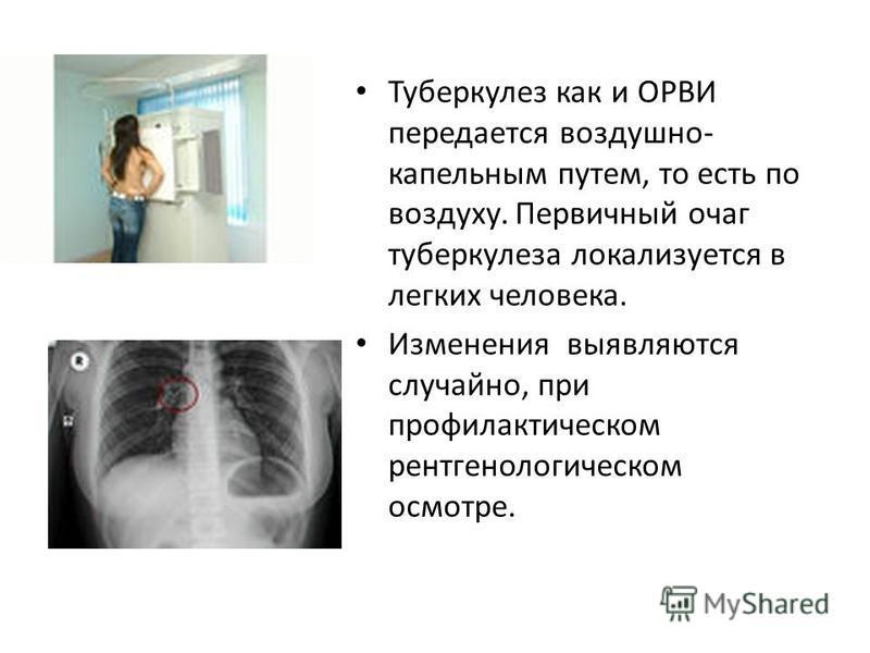Туберкулез как и ОРВИ передается воздушно- капельным путем, то есть по воздуху. Первичный очаг туберкулеза локализуется в легких человека. Изменения выявляются случайно, при профилактическом рентгенологическом осмотре.