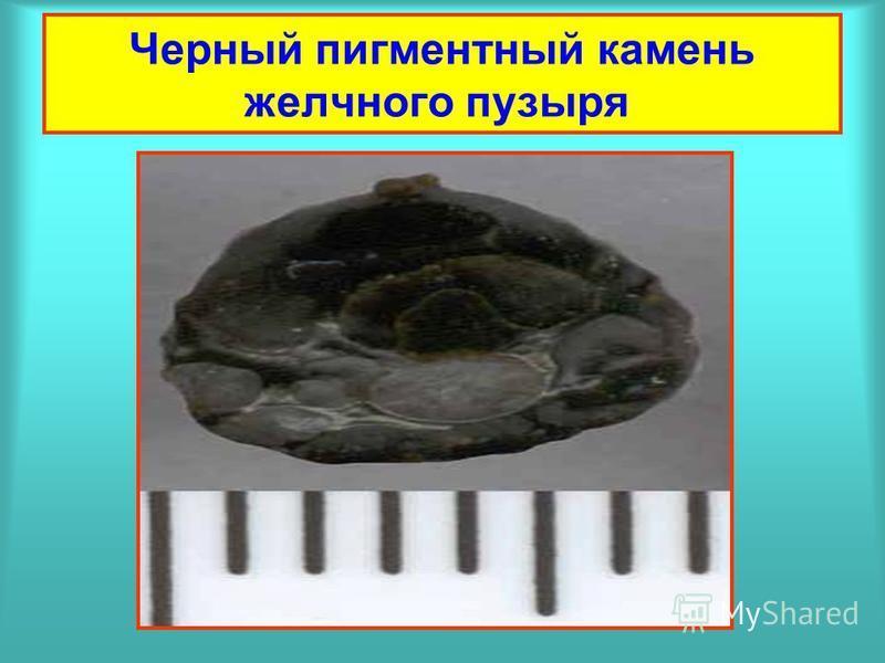 Черный пигментный камень желчного пузыря