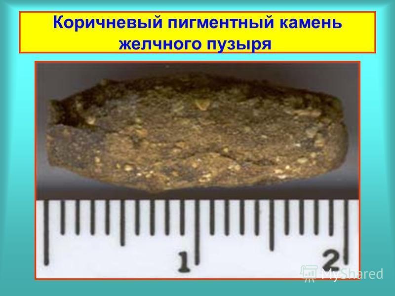 Коричневый пигментный камень желчного пузыря