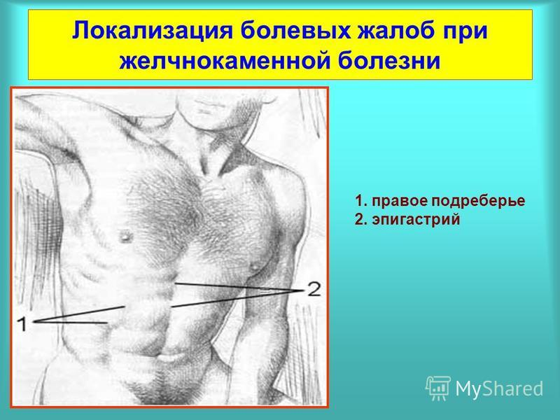 Локализация болевых жалоб при желчнокаменной болезни 1. правое подреберье 2. эпигастрий