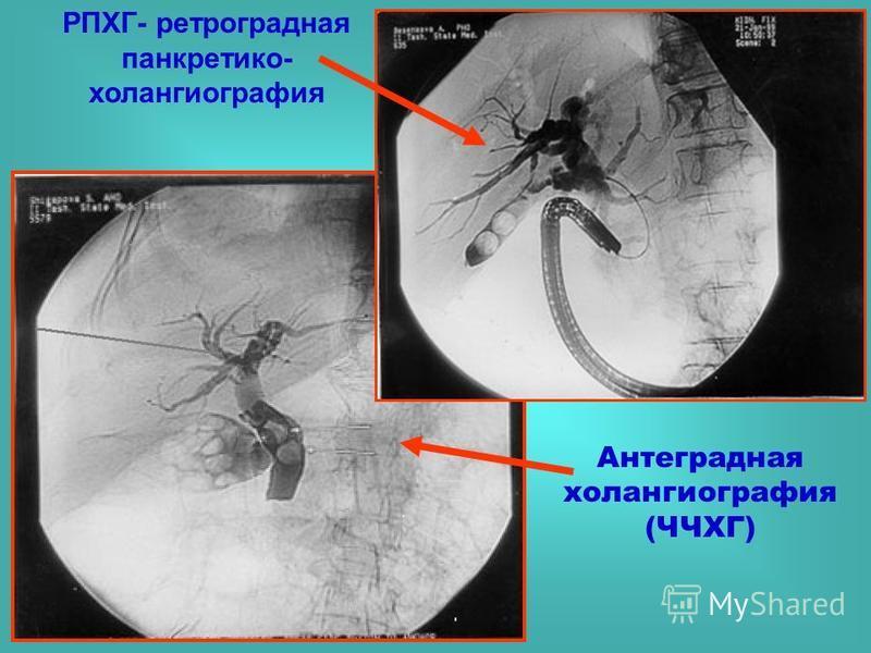 РПХГ- ретроградная панкретико- холангиография Антеградная холангиография (ЧЧХГ)