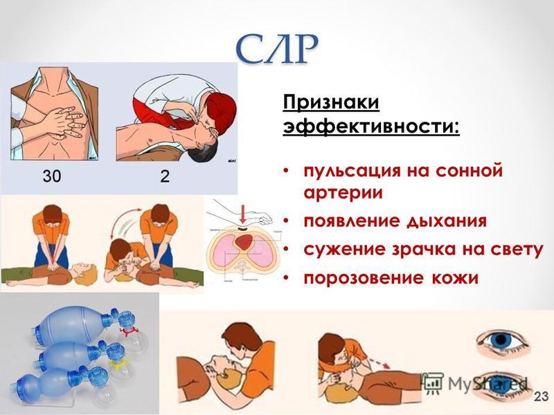 СЛР 23 Признаки эффективности: пульсация на сонной артерии появление дыхания сужение зрачка на свету порозовение кожи