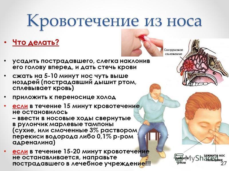 Кровотечение из носа Что делать? усадить пострадавшего, слегка наклонив его голову вперед, и дать стечь крови сжать на 5-10 минут нос чуть выше ноздрей (пострадавший дышит ртом, сплевывает кровь) приложить к переносице холод если в течение 15 минут к