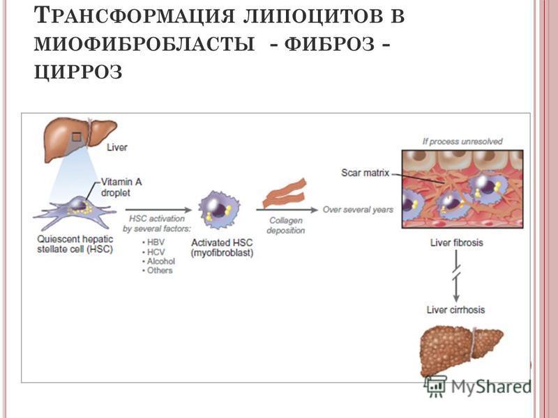 Т РАНСФОРМАЦИЯ ЛИПОЦИТОВ В МИОФИБРОБЛАСТЫ - ФИБРОЗ - ЦИРРОЗ