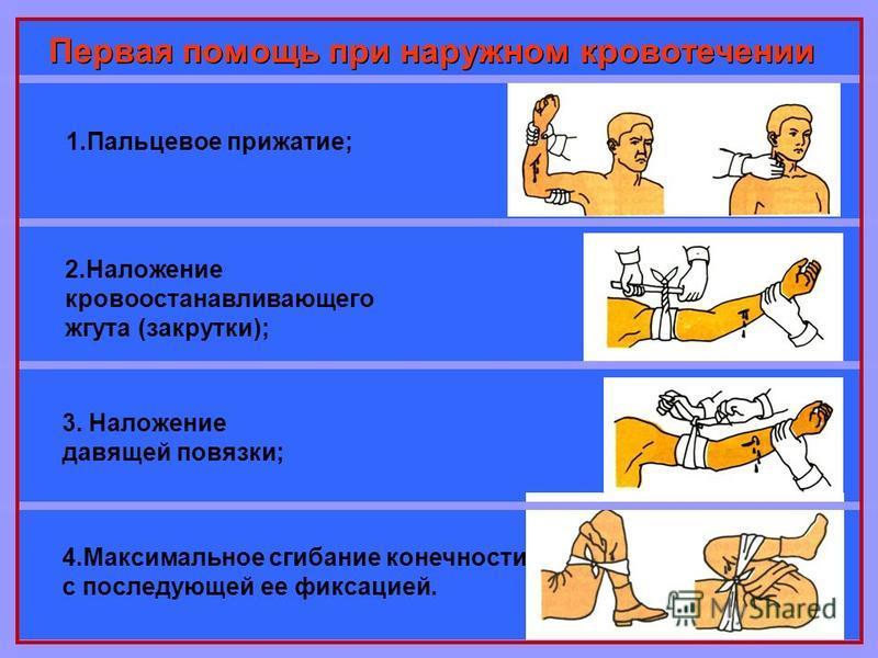 Первая помощь при наружном кровотечении 1. Пальцевое прижатие; 2. Наложение кровоостанавливающего жгута (закрутки); 3. Наложение давящей повязки; 4. Максимальное сгибание конечности с последующей ее фиксацией.