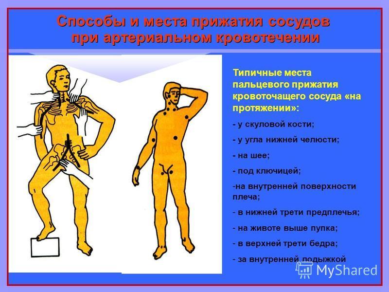 Способы и места прижатия сосудов при артериальном кровотечении Типичные места пальцевого прижатия кровоточащего сосуда «на протяжении»: - у скуловой кости; - у угла нижней челюсти; - на шее; - под ключицей; -на внутренней поверхности плеча; - в нижне