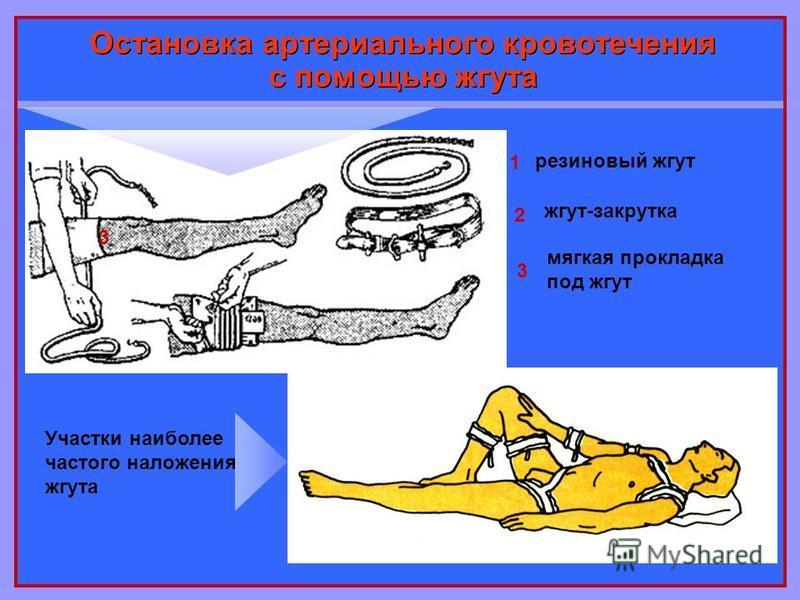 Остановка артериального кровотечения с помощью жгута 1 2 3 резиновый жгут жгут-закрутка 3 мягкая прокладка под жгут Участки наиболее частого наложения жгута