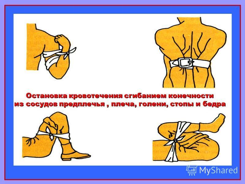 Остановка кровотечения сгибанием конечности из сосудов предплечья, плеча, голени, стопы и бедра