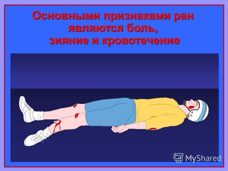 Основными признаками ран являются боль, зияние и кровотечение