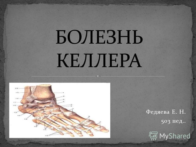 Федяева Е. Н. 503 пед..