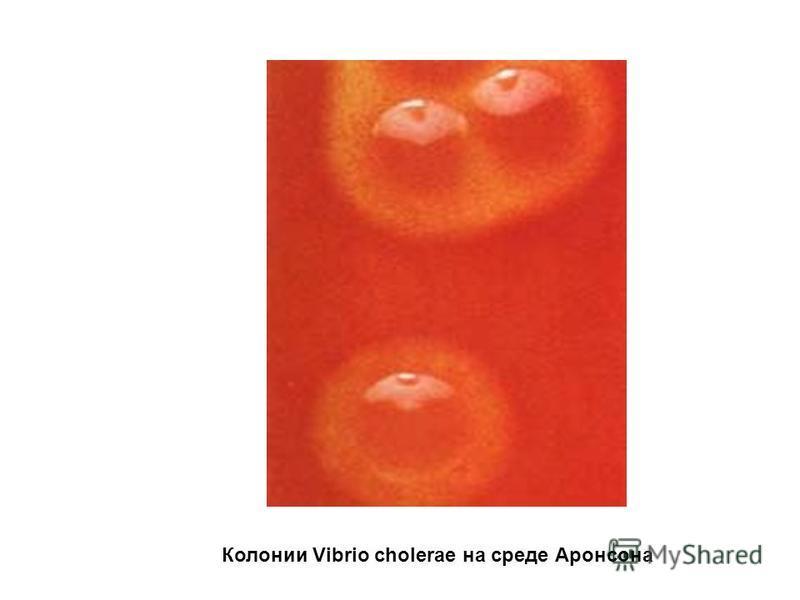 Колонии Vibrio cholerae на среде Аронсона