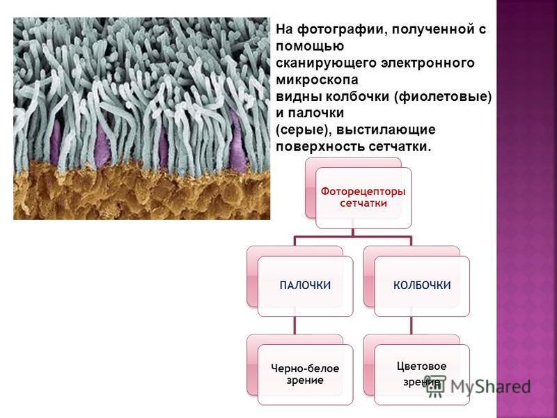 На фотографии, полученной с помощью сканирующего электронного микроскопа видны колбочки (фиолетовые) и палочки (серые), выстилающие поверхность сетчатки. Фоторецепторы сетчатки ПАЛОЧКИ Черно-белое зрение КОЛБОЧКИ Цветовое зрение