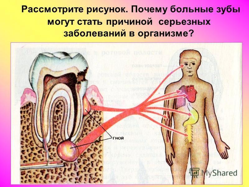 Рассмотрите рисунок. Почему больные зубы могут стать причиной серьезных заболеваний в организме?