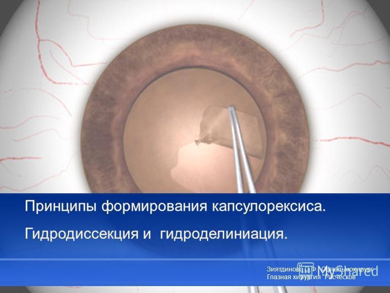 Зиятдинова О.Ф., Офтальмохирург Глазная хирургия Расческов