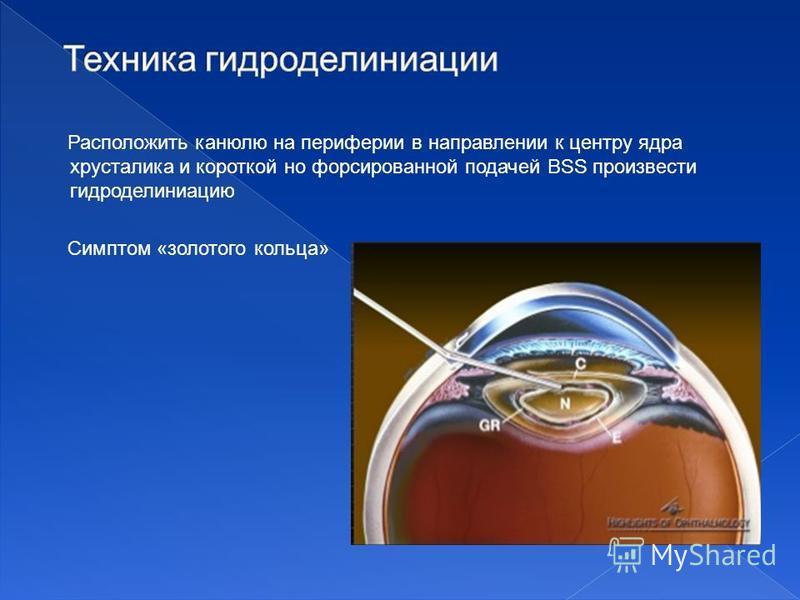 Расположить канюлю на периферии в направлении к центру ядра хрусталика и короткой но форсированной подачей BSS произвести гидроделиниацию Симптом «золотого кольца»