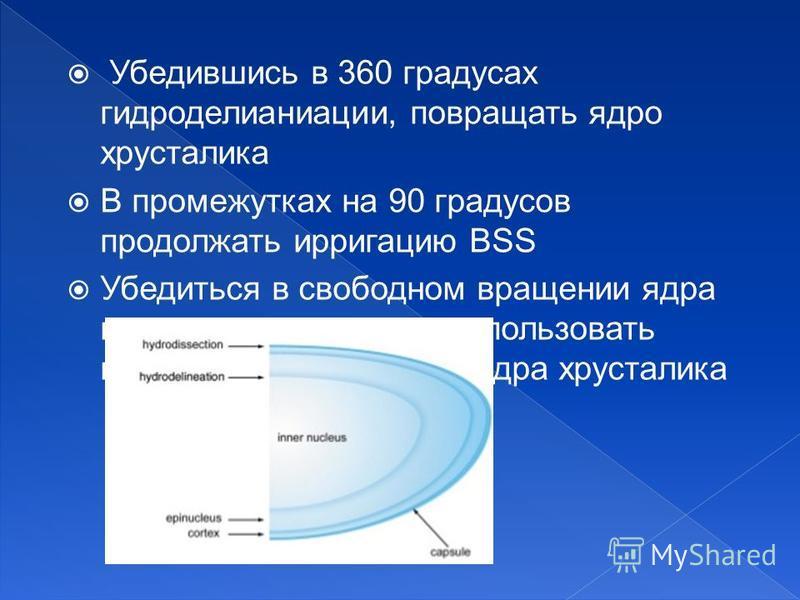 Убедившись в 360 градусах гидроделианиации, повращать ядро хрусталика В промежутках на 90 градусов продолжать ирригацию BSS Убедиться в свободном вращении ядра и эпинуклеуса, можно использовать канюлю или вращатель ядра хрусталика