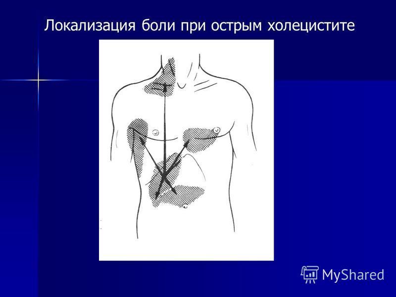 Локализация боли при острым холецистите