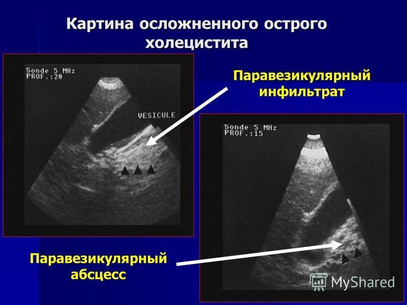 Картина осложненного острого холецистита Паравезикулярный абсцесс Паравезикулярный инфильтрат
