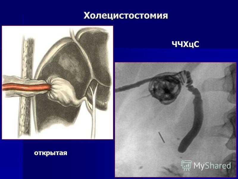Холецистостомия открытая ЧЧХцС