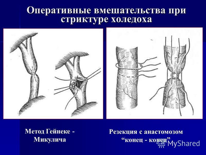 Оперативные вмешательства при стриктуре холедоха Метод Гейнеке - Микулича Резекция с анастомозомконец - конец