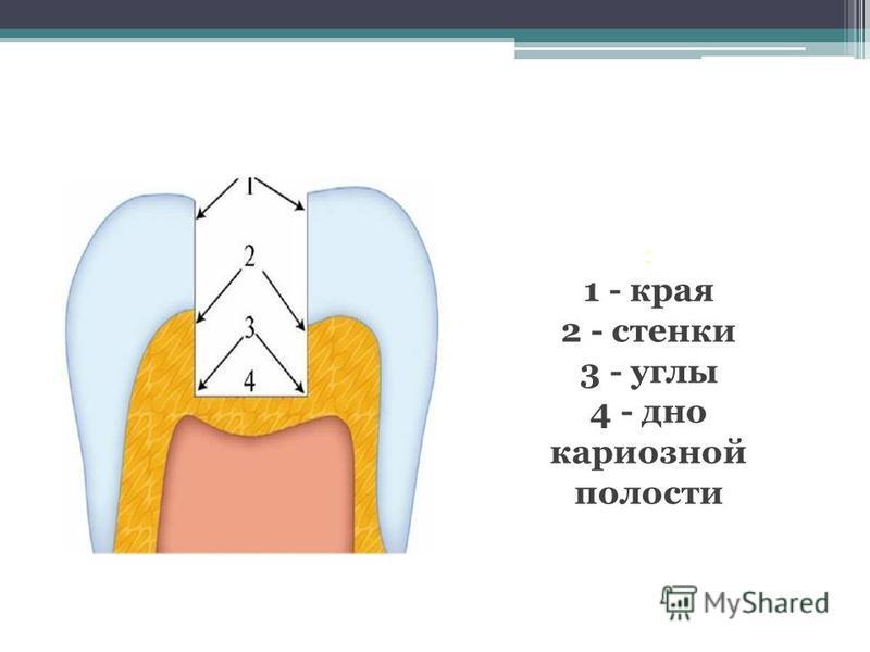 : 1 - края 2 - стенки 3 - углы 4 - дно кариозной полости