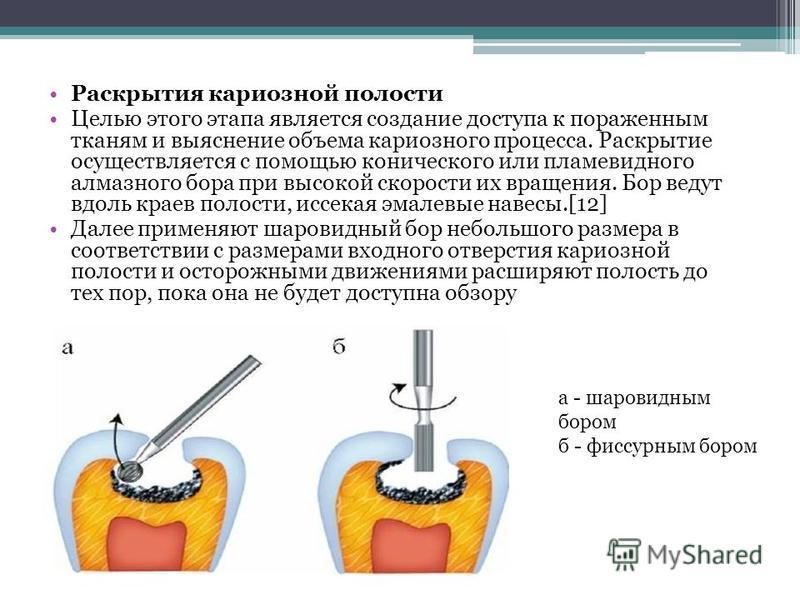 Раскрытия кариозной полости Целью этого этапа является создание доступа к пораженным тканям и выяснение объема кариозного процесса. Раскрытие осуществляется с помощью конического или пламевидного алмазного бора при высокой скорости их вращения. Бор в