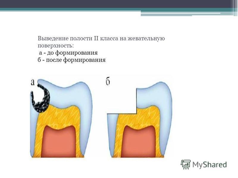 Выведение полости II класса на жевательную поверхность: а - до формирования б - после формирования