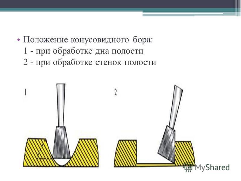 Положение конусовидного бора: 1 - при обработке дна полости 2 - при обработке стенок полости