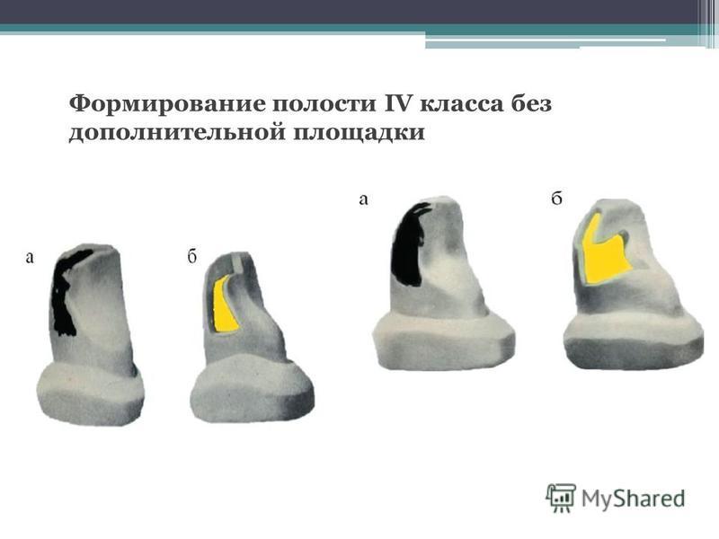 Формирование полости IV класса без дополнительной площадки