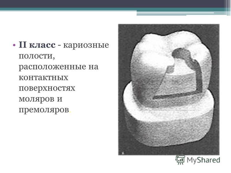 II класс - кариозные полости, расположенные на контактных поверхностях моляров и премоляров.