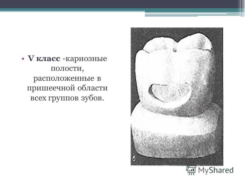 V класс -кариозные полости, расположенные в пришеечной области всех группов зубов.