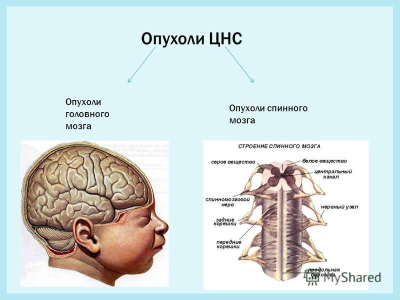 Опухоли ЦНС Опухоли головного мозга Опухоли спинного мозга