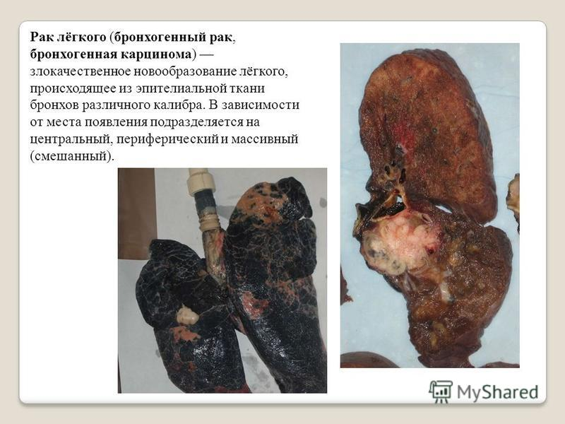Рак лёгкого (бронхогенный рак, бронхогенная карцинома) злокачественное новообразование лёгкого, происходящее из эпителиальной ткани бронхов различного калибра. В зависимости от места появления подразделяется на центральный, периферический и массивный