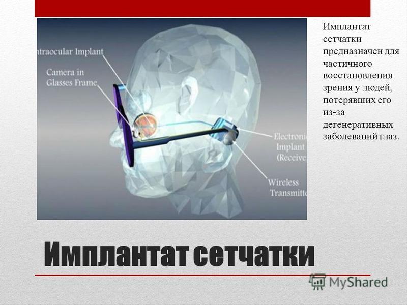 Имплантат сетчатки Имплантат сетчатки предназначен для частичного восстановления зрения у людей, потерявших его из-за дегенеративных заболеваний глаз.