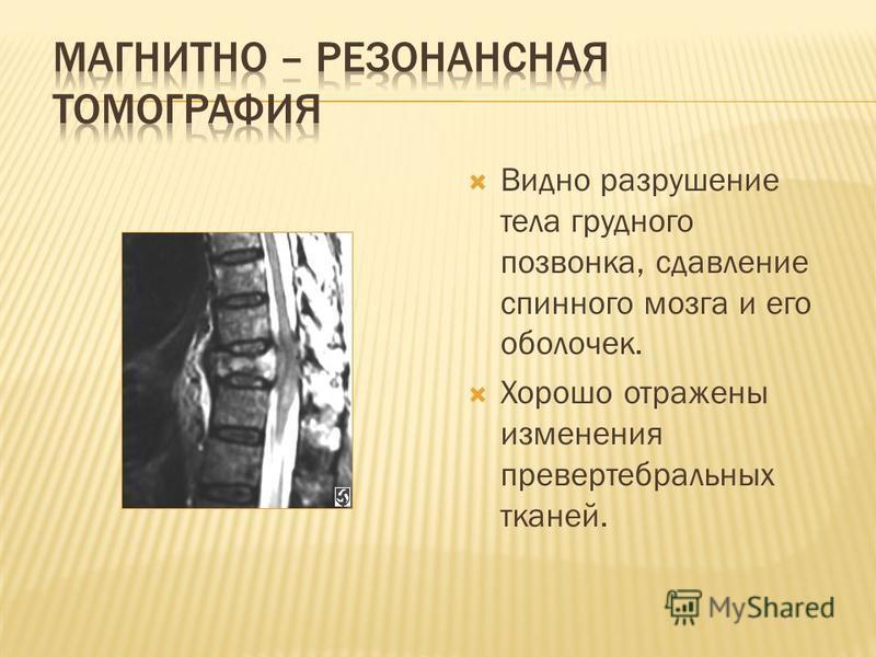 Видно разрушение тела грудного позвонка, сдавление спинного мозга и его оболочек. Хорошо отражены изменения паравертебральных тканей.
