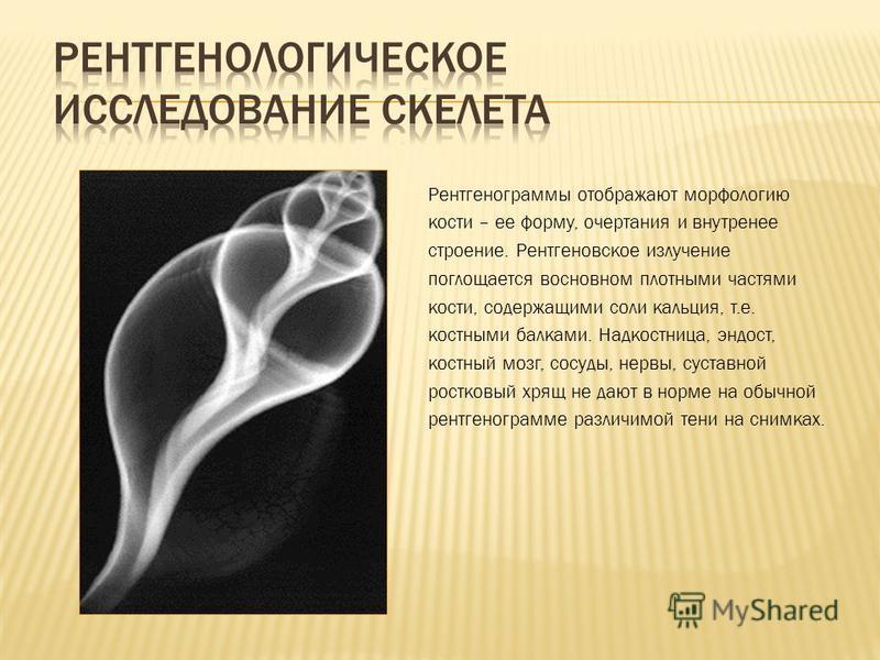 Рентгенограммы отображают морфологию кости – ее форму, очертания и внутреннее строение. Рентгеновское излучение поглощается в основном плотными частями кости, содержащими соли кальция, т.е. костными балками. Надкостница, эндост, костный мозг, сосуды,
