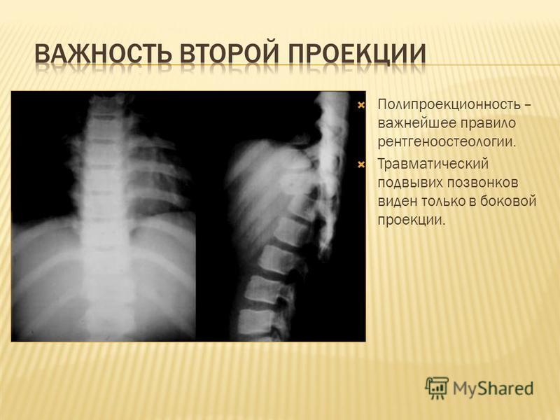 Полипроекционность – важнейшее правило рентгеноостеологии. Травматический подвывих позвонков виден только в боковой проекции.