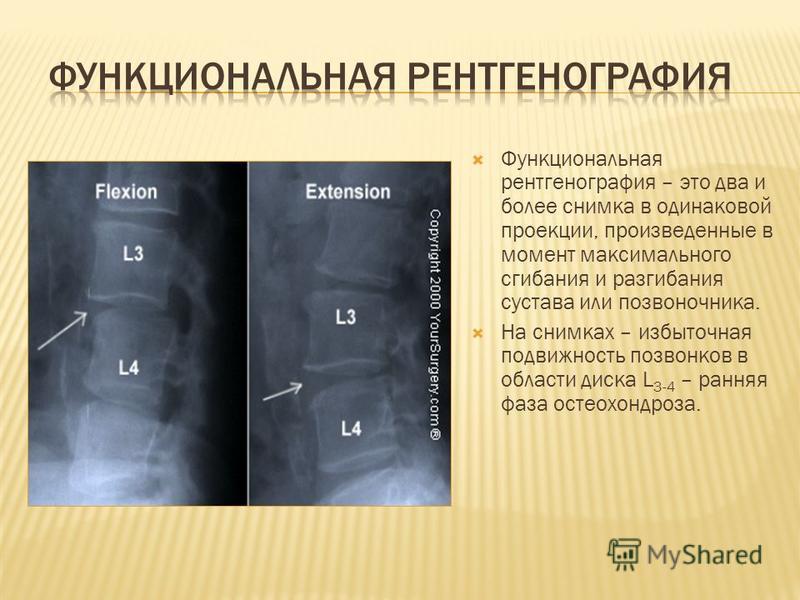 Функциональная рентгенография – это два и более снимка в одинаковой проекции, произведенные в момент максимального сгибания и разгибания сустава или позвоночника. На снимках – избыточная подвижность позвонков в области диска L 3-4 – ранняя фаза остео