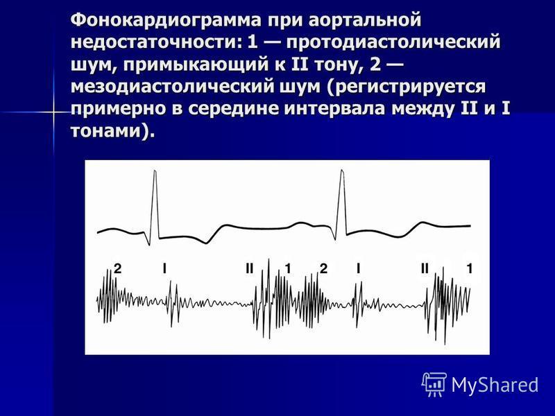 Фонокардиограмма при аортальной недостаточности: 1 протодиастолический шум, примыкающий к II тону, 2 мезодиастолический шум (регистрируется примерно в середине интервала между II и I тонами).