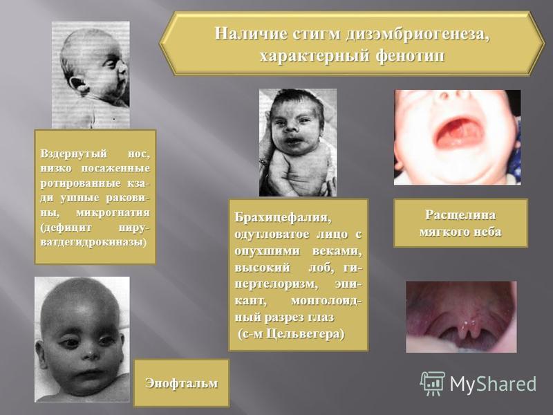 Вздернутый нос, низко посаженные торированные кзади ушные раковины, микрогнатия (дефицит пиру- ватдегидрокиназы Вздернутый нос, низко посаженные торированные кзади ушные раковины, микрогнатия (дефицит пиру- ватдегидрокиназы ) Брахицефалия, одутловато