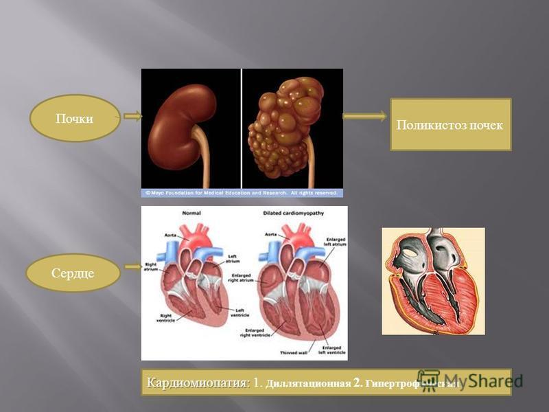 Почки Поликистоз почек Сердце Кардиомиопатия: Кардиомиопатия: 1. Диллятасионная 2. Гипертрофическая