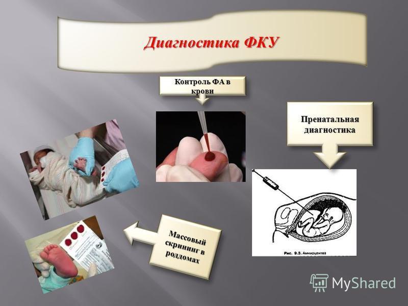 Диагностика ФКУ Пренатальная диагностика Контроль ФА в крови