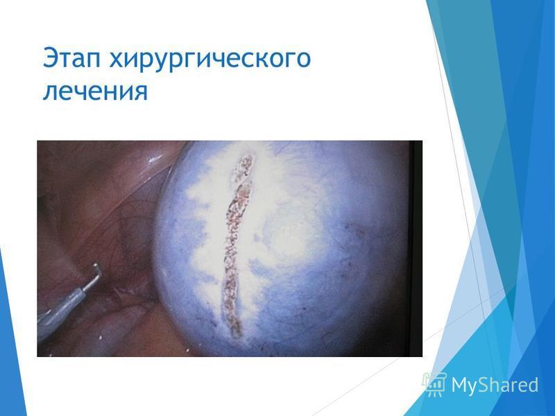 Этап хирургического лечения