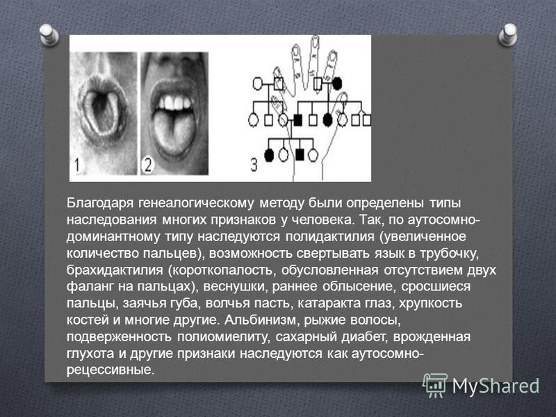 Благодаря генеалогическому методу были определены типы наследования многих признаков у человека. Так, по аутосомно - доминантному типу наследуются полидактилия ( увеличенное количество пальцев ), возможность свертывать язык в трубочку, брахидактилия