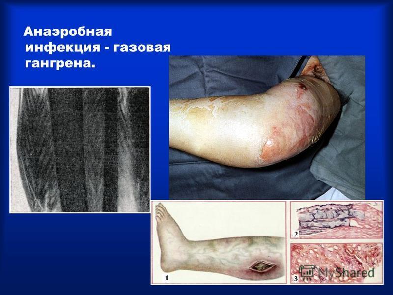 Анаэробная инфекция - газовая гангрена.