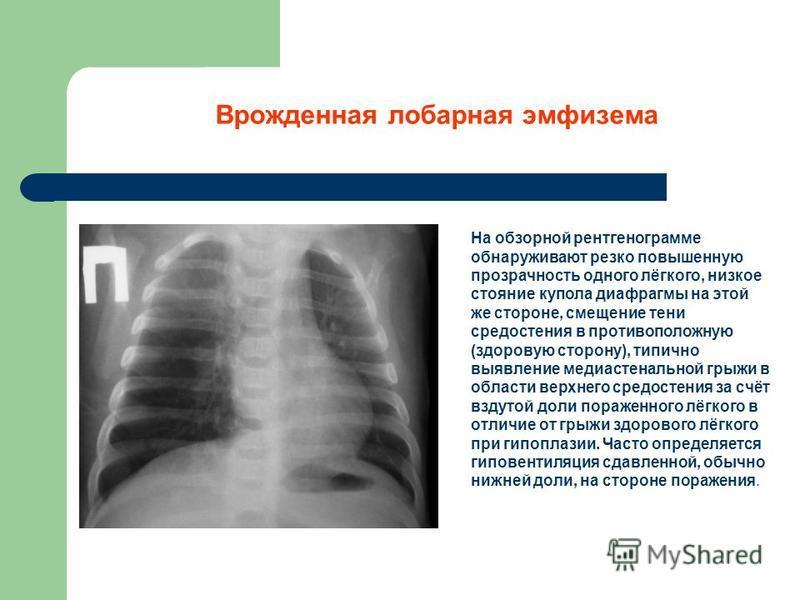Врожденная лобарная эмфизема На обзорной рентгенограмме обнаруживают резко повышенную прозрачность одного лёгкого, низкое стояние купола диафрагмы на этой же стороне, смещение тени средостения в противоположную (здоровую сторону), типично выявление м