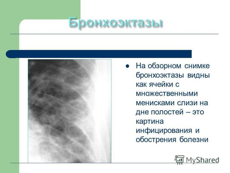 На обзорном снимке бронхоэктазы видны как ячейки с множественными менисками слизи на дне полостей – это картина инфицирования и обострения болезни
